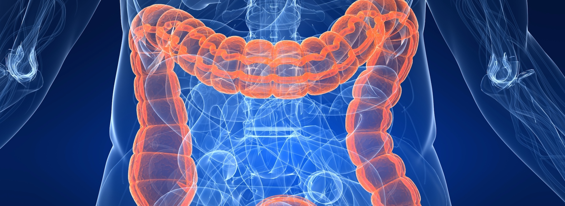 Colorectal Cancer Month
